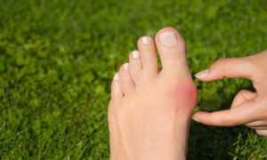 О чем говорят шишки на ноге: насколько они опасны – мнение врачей