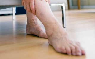 Тромб в ноге: не пропустите первые симптомы, как определить тромб (фото)