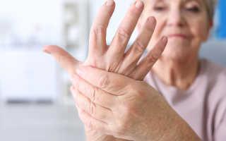 Почему немеют руки и пальцы, о чем это говорит: важно знать