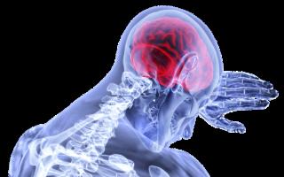 Нейрохирург рассказал о симптомах рака мозга: 3 основных признака